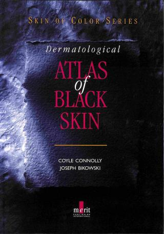 Connolly Coyle - Bikowski Joseph - Dermatological Atlas of Black Skin